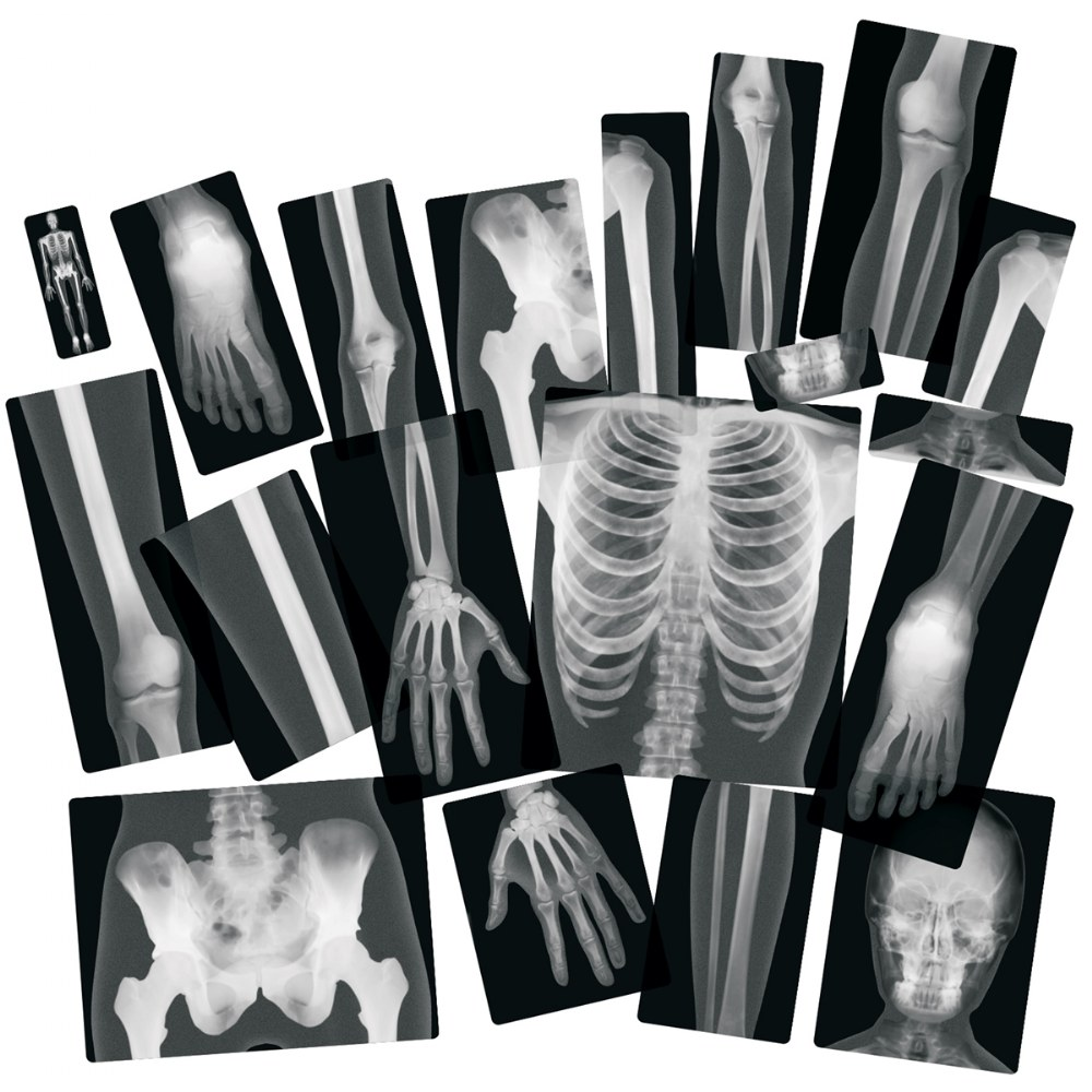 Alternate Image #1 of Human X-Rays on Film