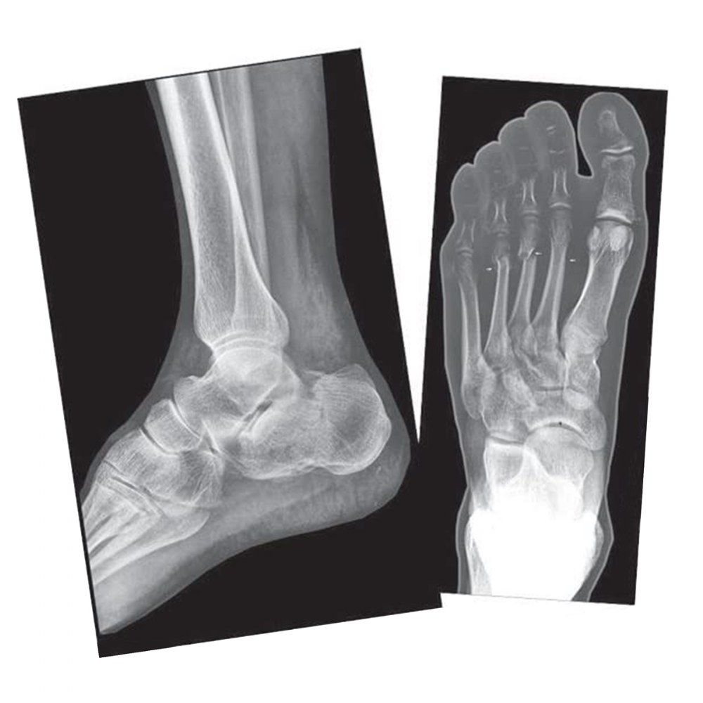 Alternate Image #2 of Broken Bones X-Rays