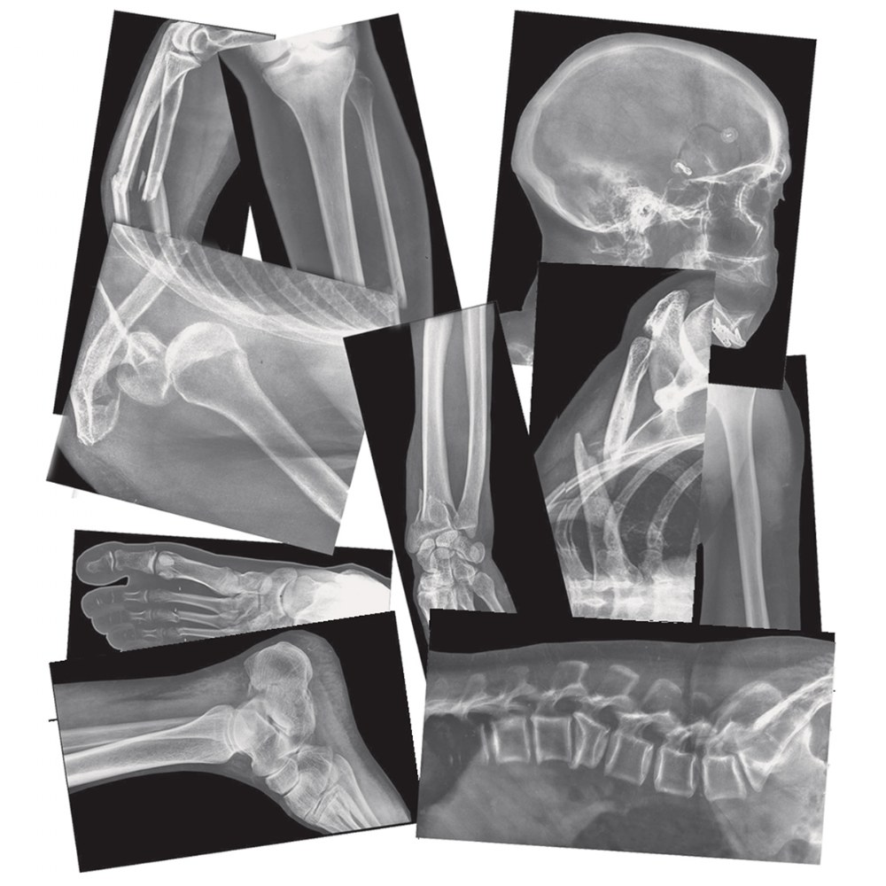Alternate Image #4 of Broken Bones X-Rays