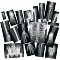 Alternate Thumbnail Image #1 of Human X-Rays on Film