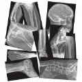 Alternate Thumbnail Image #4 of Broken Bones X-Rays